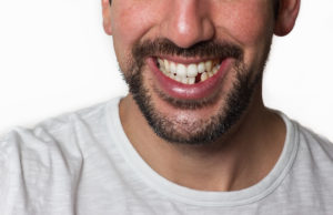 Dangers Of Missing Teeth